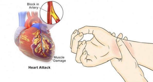 Simple Ways To Prevent Heart Attack With These 5 Steps 90% Proven Very Effective