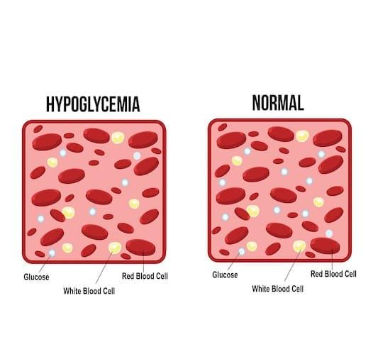 انخفاض نسبة السكر في الدم Hypoglycemia