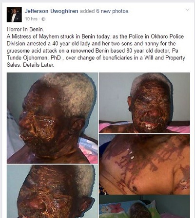 Horror! See What a Heartless Mother and Her Two Sons Did to a Doctor Over Properties in Benin (Graphic Photos)
