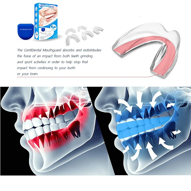 Top 3 Best Hot Professional Dental Guard Mouth Guard