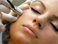 Endoskopi, Cara Atasi Kerutan pada Dahi dan Alis Turun