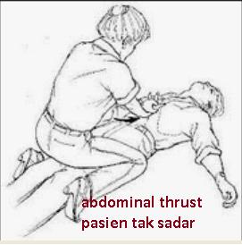 sumbatan jalan nafas abdominal thrust