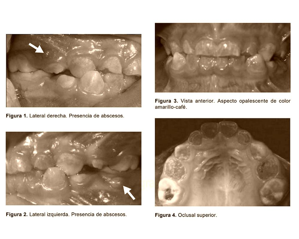 Dentinogenesis