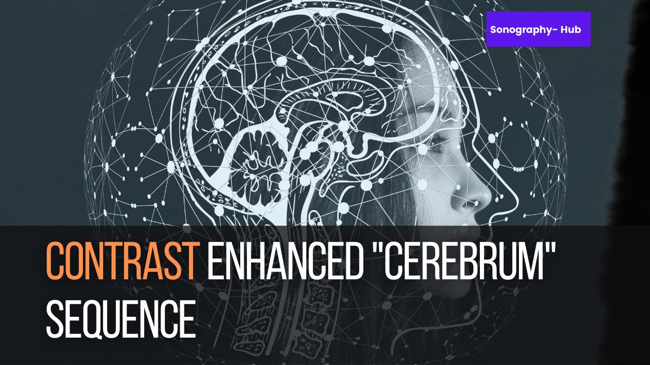 Contrast Enhanced Cerebrum Sequence | CT Beginners Tips