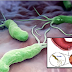 Eliminating NT and Helicobacter Pylori Bacteria In Your Stomach Easily