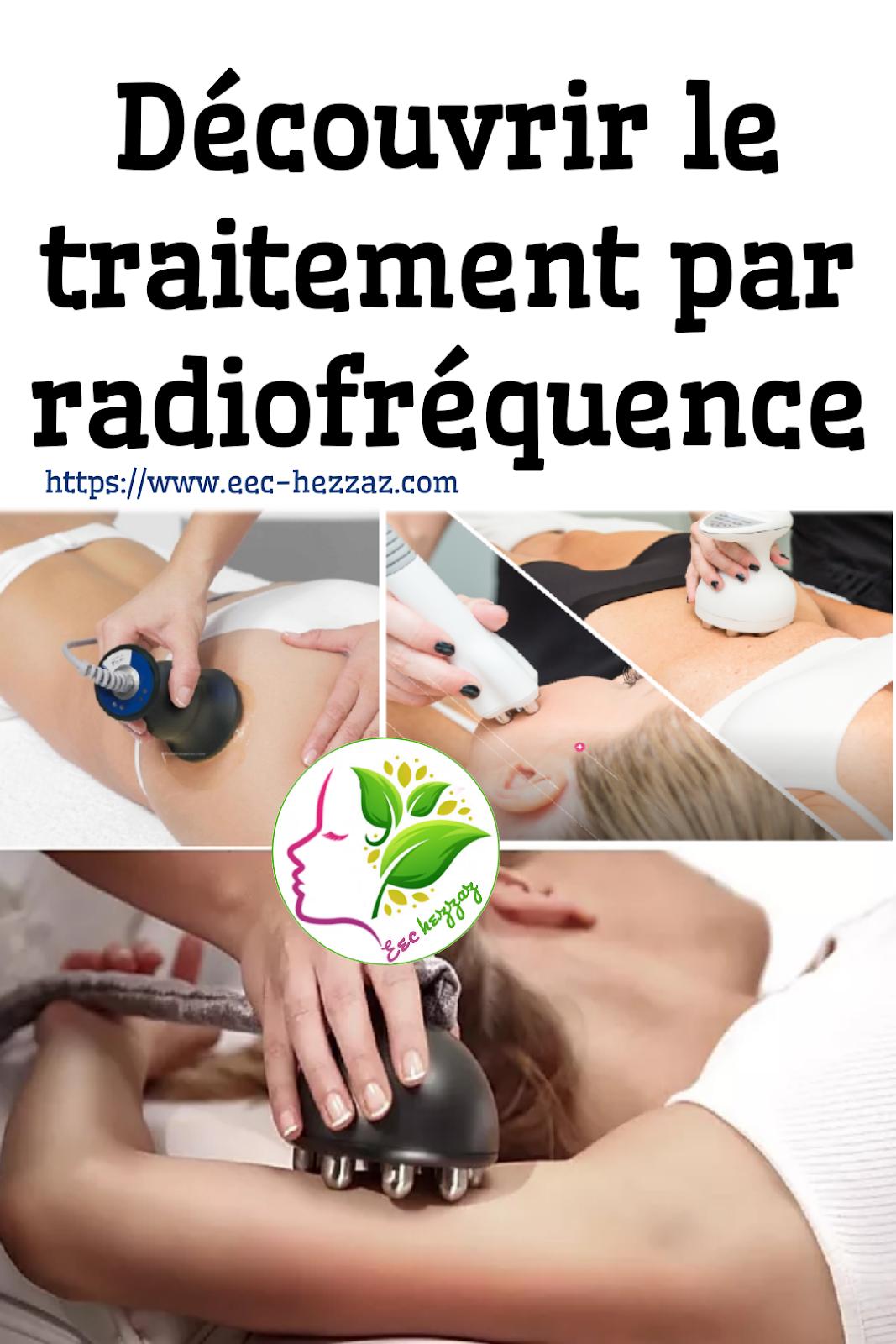 Découvrir le traitement par radiofréquence