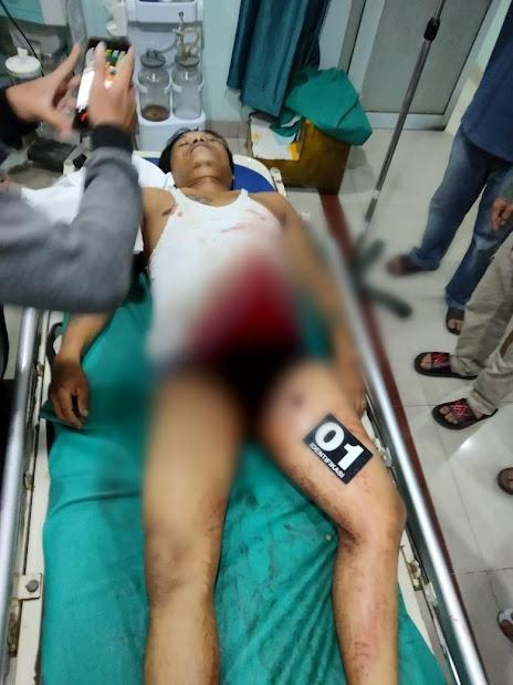 Wartawan Diduga Ditembak OTK di Dekat Rumahnya