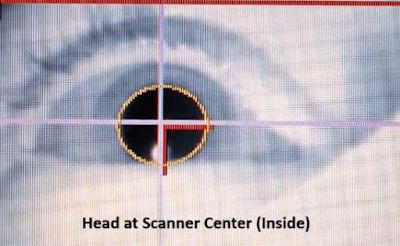 水平方向への前庭動眼反射