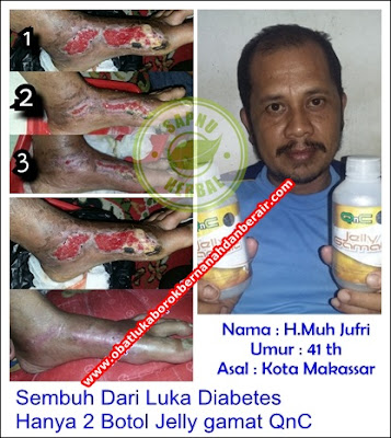 Cara Ampuh Menyembuhkan Diabetes Kering Sampai Tuntas
