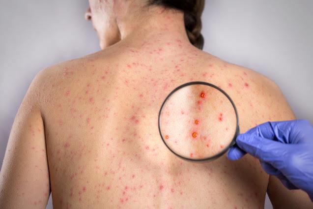 Infeksi Virus Rubella