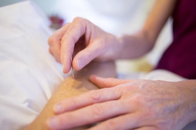 Conheça os benefícios da acupuntura para a saúde mental