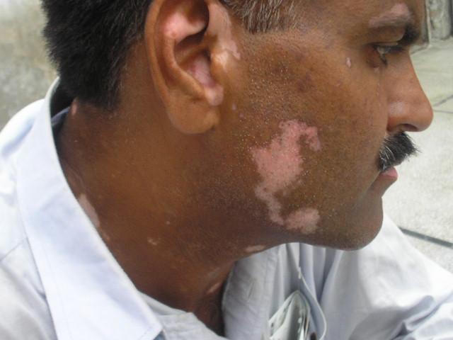 vitiligo pictures