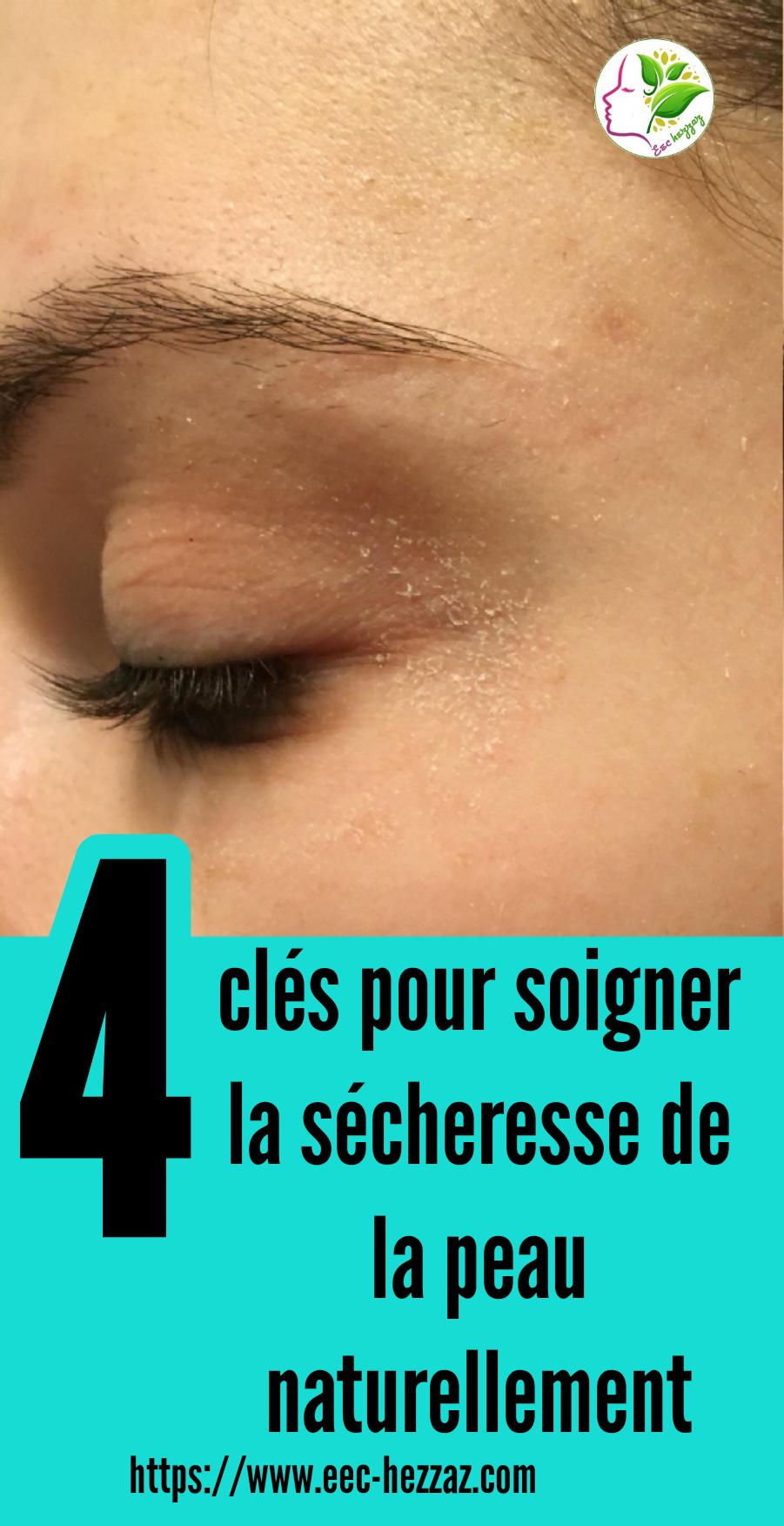 4 clés pour soigner la sécheresse de la peau naturellement