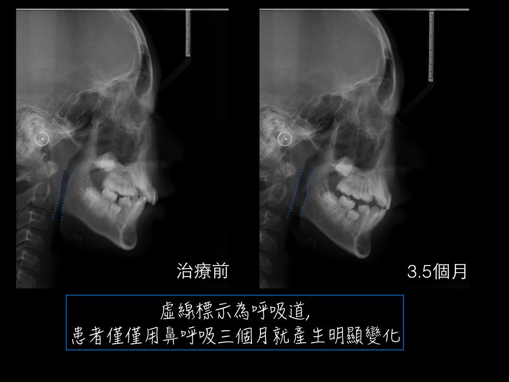 楓雅牙醫 廖曼鈞矯正專欄: 兒童早期牙齒矯正案例 :口呼吸#1