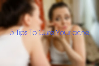 5 Tips To Cure Your Acne