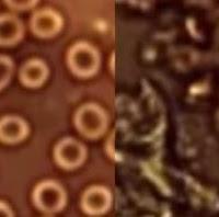 """ESPANTOSO: Vacinas Covid estão modificando seu sangue..."""" ZUMBIS ou OGM?"""