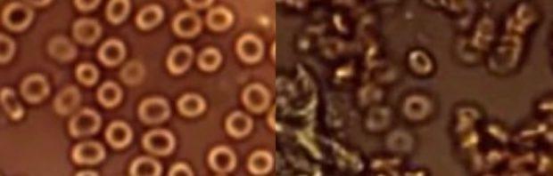 O médico compartilha imagens horríveis: isso é o que as vacinas corona fazem ao seu sangue