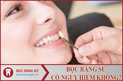 bọc răng sứ có nguy hiểm không -1