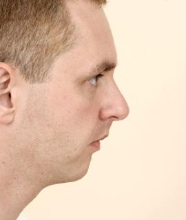 Weak chin Female, Male, Test, Celebrities