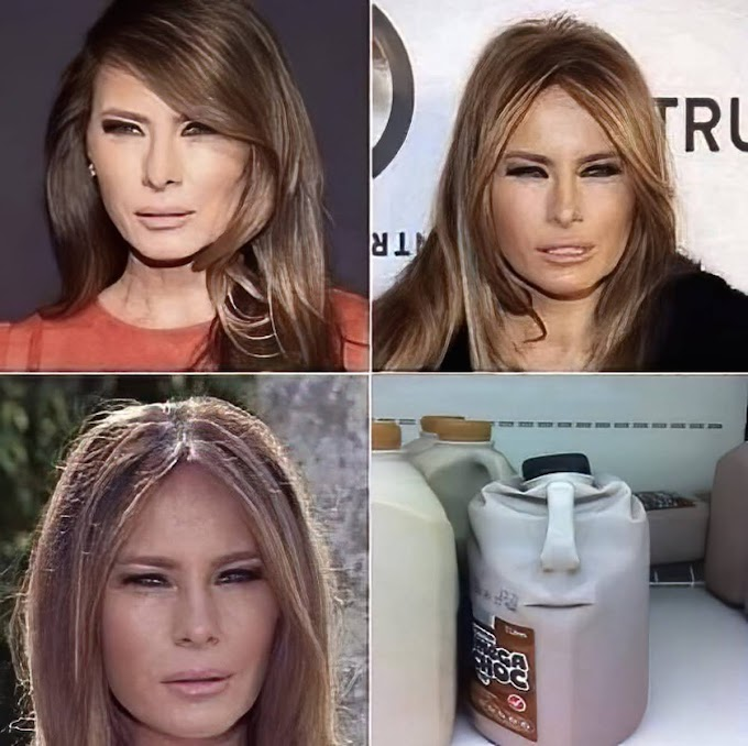 あまりの夫婦仲の悪さから、夫トランプ容疑者と突然に仲むつまじい女性はソックリさんのニセモノではないか⁉️🤔との影武者説まで飛び出した元美人モデルの妻メラニア容疑者のあんな顔こんな顔‼️という冗談😅