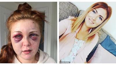 سيدة تنشر صورا مروعة لها بعد ضربها من حبيبها السابق