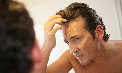 Mengatasi Rambut Rontok Pada Pria Secara Alami