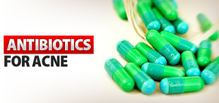the best Oral antibiotics for acne