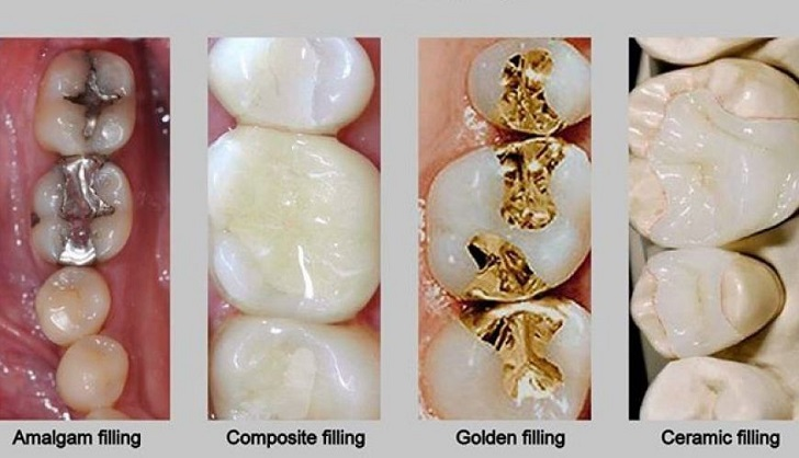 Everything You Need To Know About The Dental Cavity Fillings