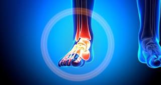 Ayak Kırılması Belirtileri ve Tedavisi