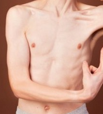 penyebab badan kurus