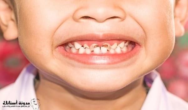 اسباب تسوس الاسنان عند الاطفال الرضع .