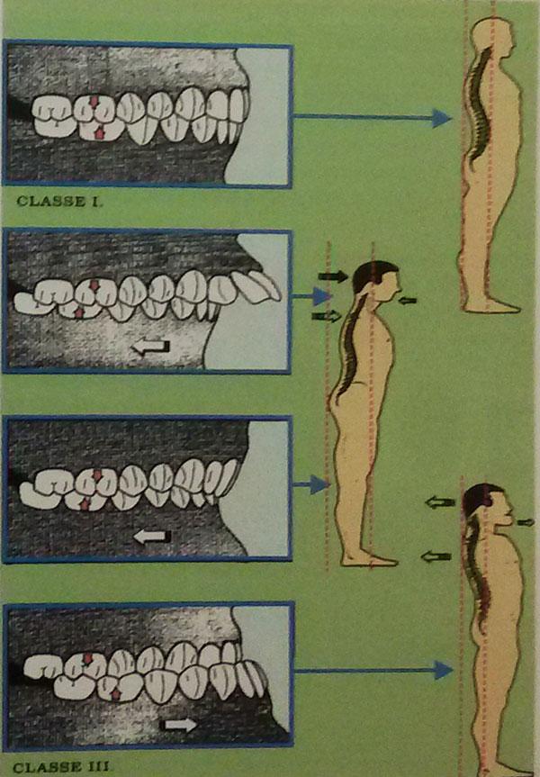 Схема прикуса человека