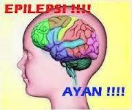 Obat Penyakit Epilepsi pada Anak