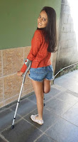 Beautiful girls amputee with crutches