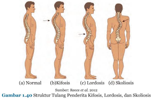 Gambar 1.40 Struktur Tulang Penderita Kifosis, Lordosis, dan Skoliosis