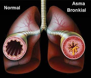 obat tradisional asma untuk pria dan wanita paling ampuh