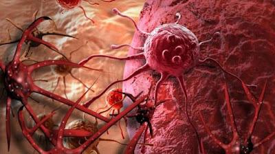 mencegah-kanker