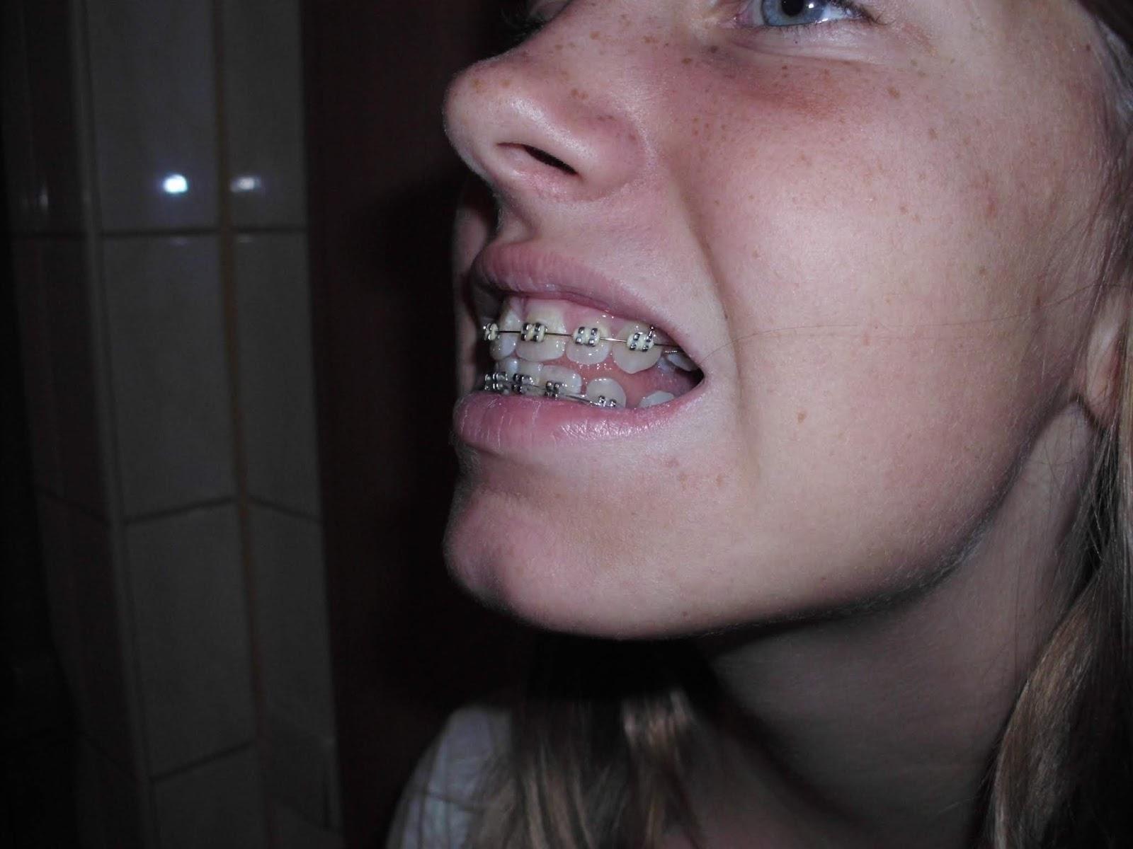 Wie sehe ich mit zahnspange aus
