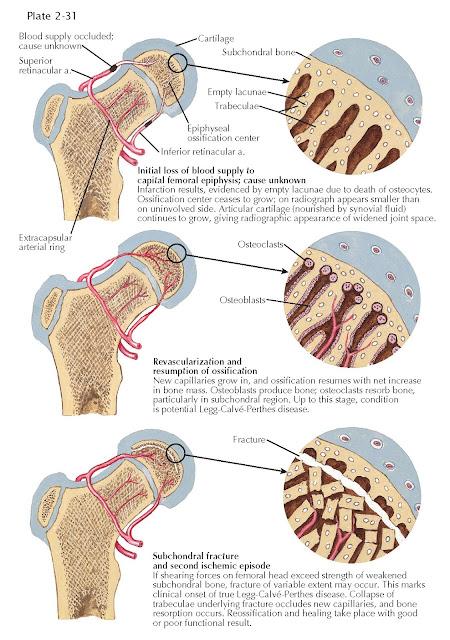 LEGG-CALVÉ-PERTHES DISEASE: PATHOGENESIS