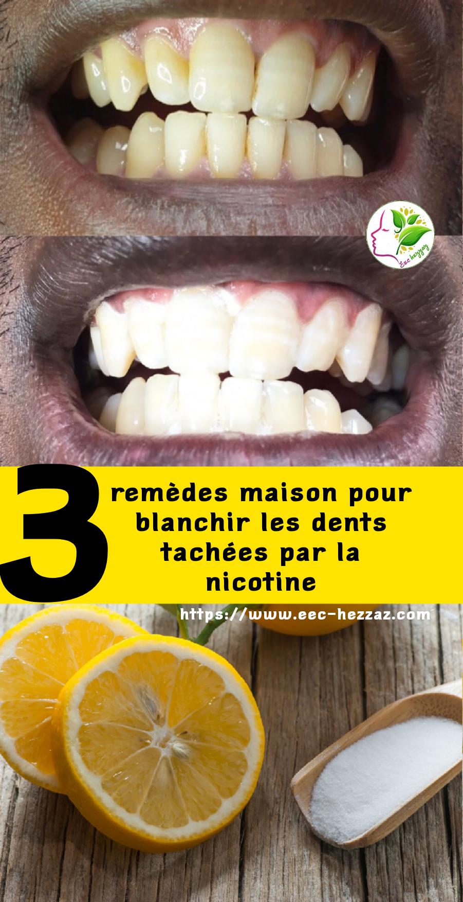 3 remèdes maison pour blanchir les dents tachées par la nicotine