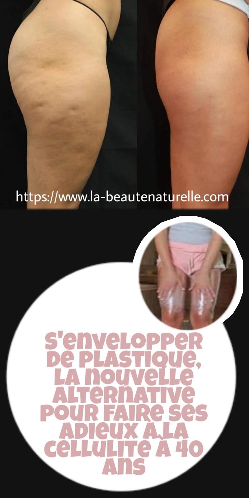 S'envelopper de plastique, la nouvelle alternative pour faire ses adieux à la cellulite à 40 ans