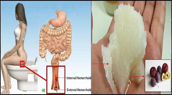vindeca hemoroizii complet