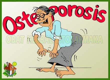 susu kalsium, susu untuk tulang, mencegah osteoporosis, mengobati osteoporosis
