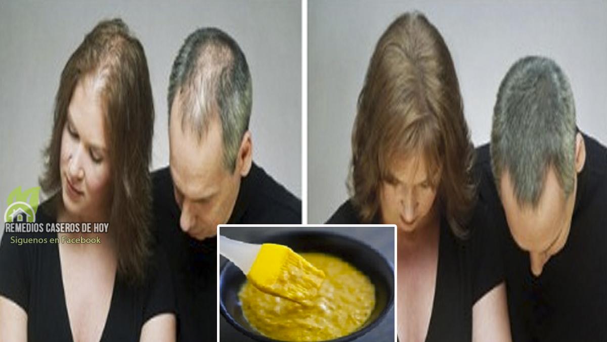 Caida de cabello huevo