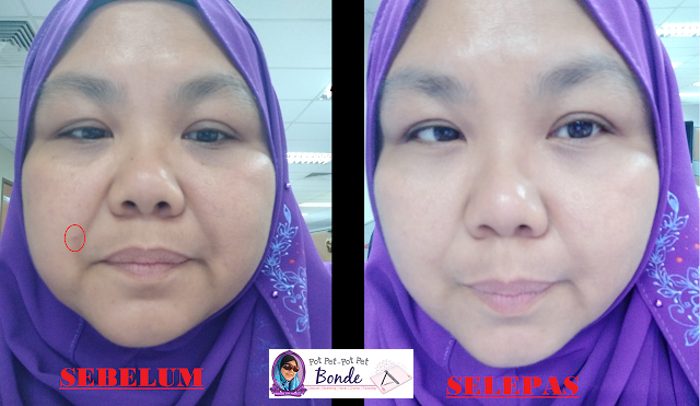 EUCERIN PROACNE A.I CLEARING TREATMENT 14 DAYS CHALLANGE , product Eucerin, jerawat,