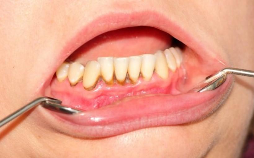 penderita sakit karang gigi