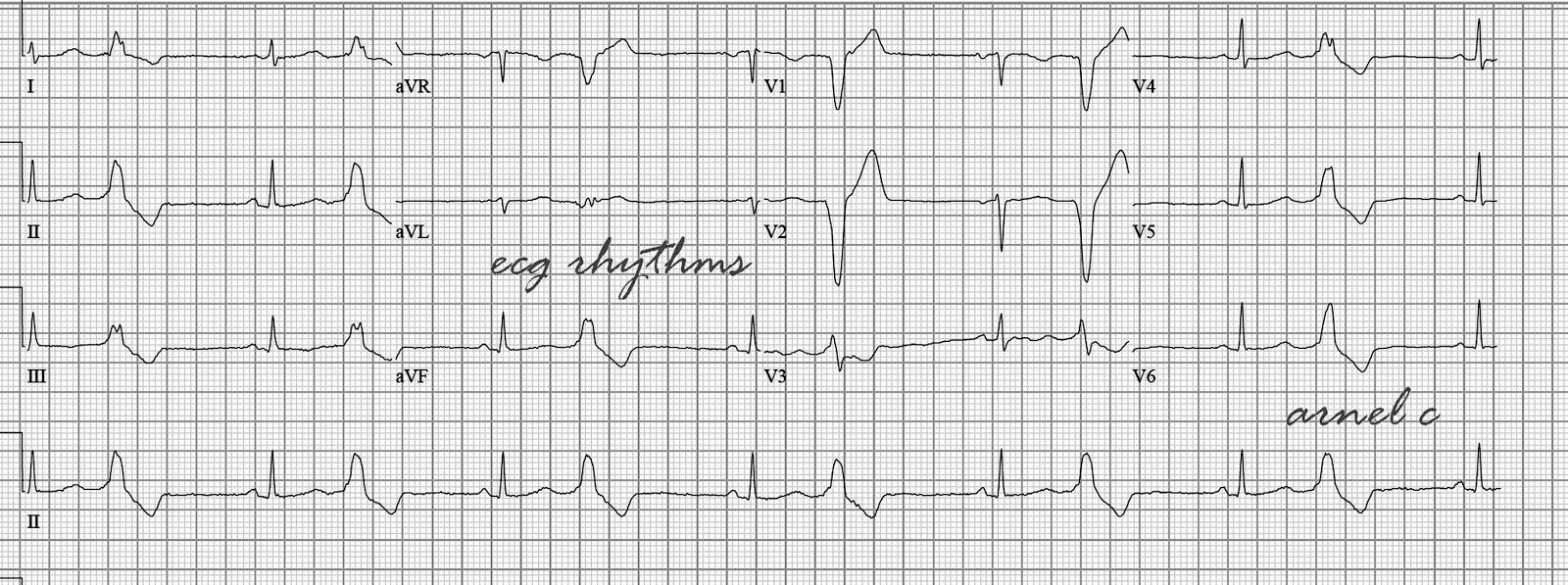 ECG Rhythms: Right Ventricular Outflow Tract Ventricular