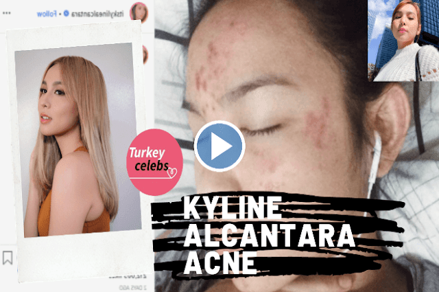 Kyline alcantara opened up about her skin issues on instagram.