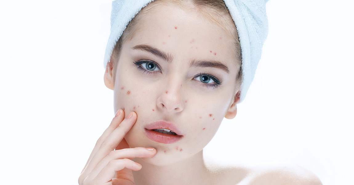Got Acne-Prone Skin? 5 Skin Care Routine You Should Be Doing