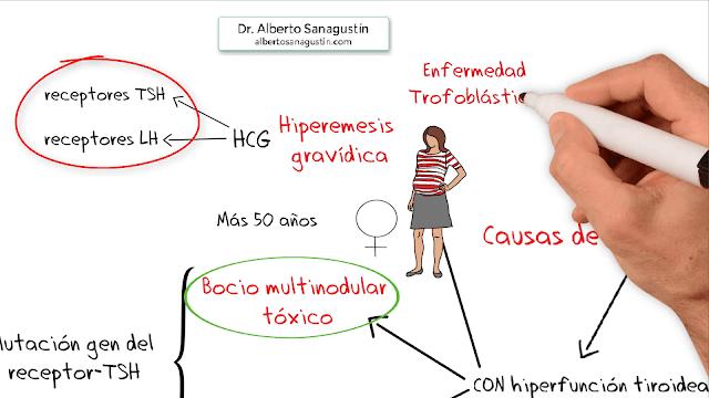 molas hidatiformes, coriocarcinomas